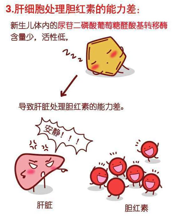 新生儿黄疸的病因