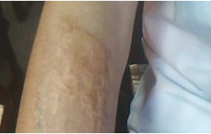 凸起性疤痕图