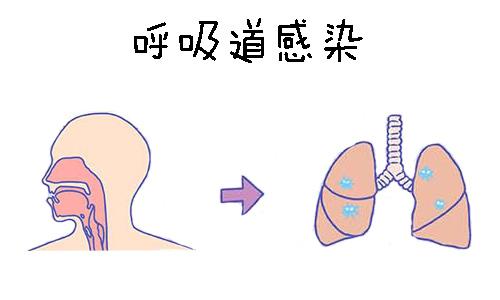 呼吸道感染的症状