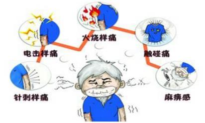 带状疱疹的症状