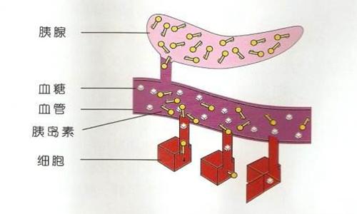 糖尿病病因