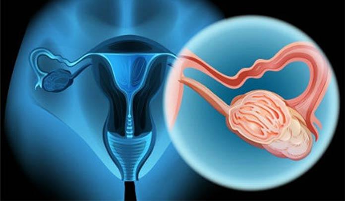 宫颈癌的病因是什么?早期症状有哪些呢?